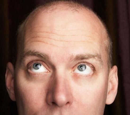 How to prevent hair loss for men?